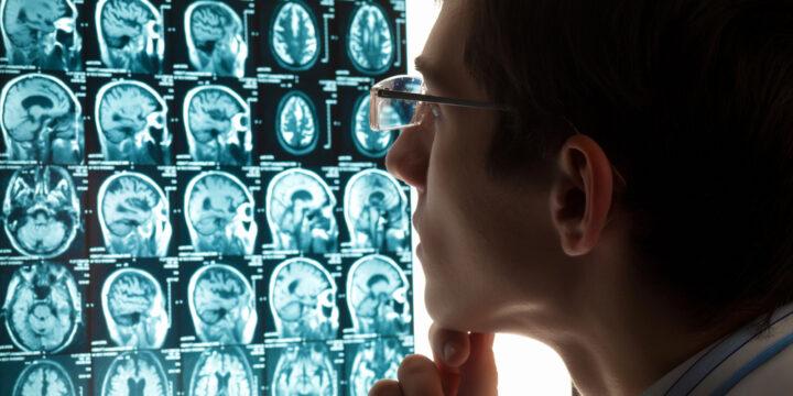 How Brain Injuries Happen
